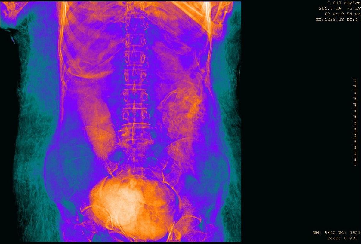 Cientistas identificam a primeira múmia egípcia grávida da história