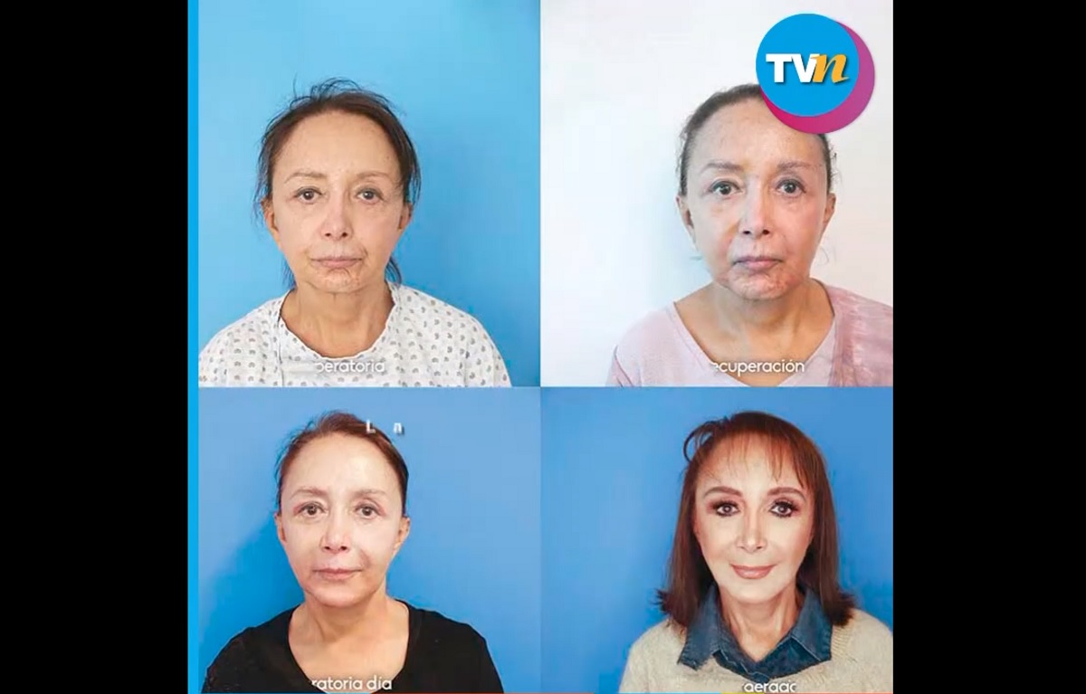 Intérprete da Chiquinha ficou 20 anos mais jovem após cirurgia plástica