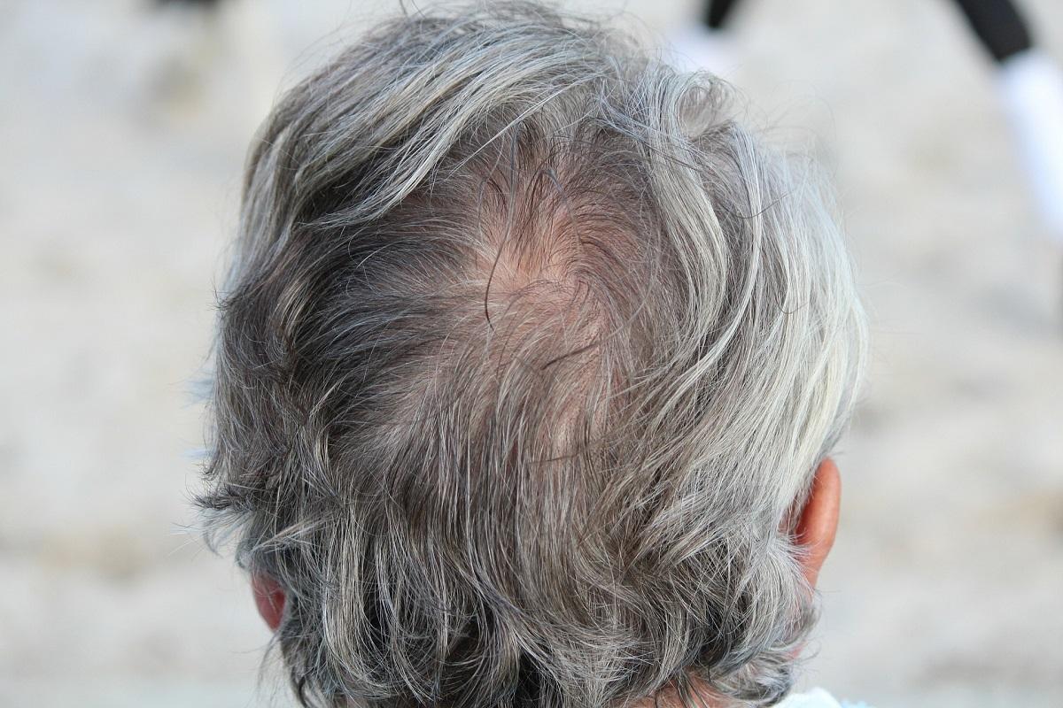 Saiba o motivo para o estresse deixar os cabelos brancos