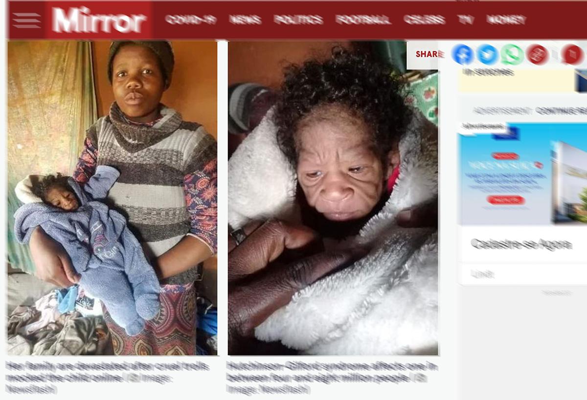 Bizarro: recém-nascida parece mais velha que a mãe