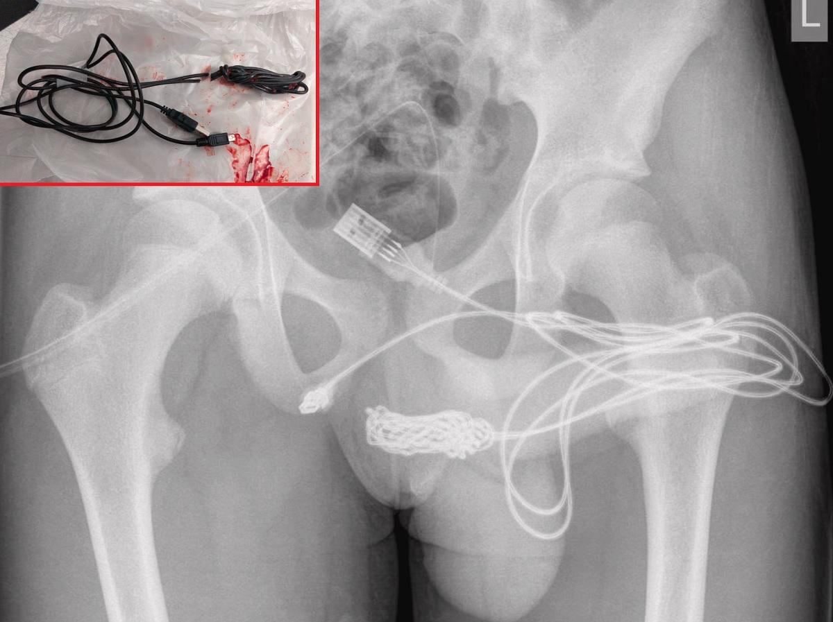Adolescente britânico é operado após inserir cabo USB no pênis