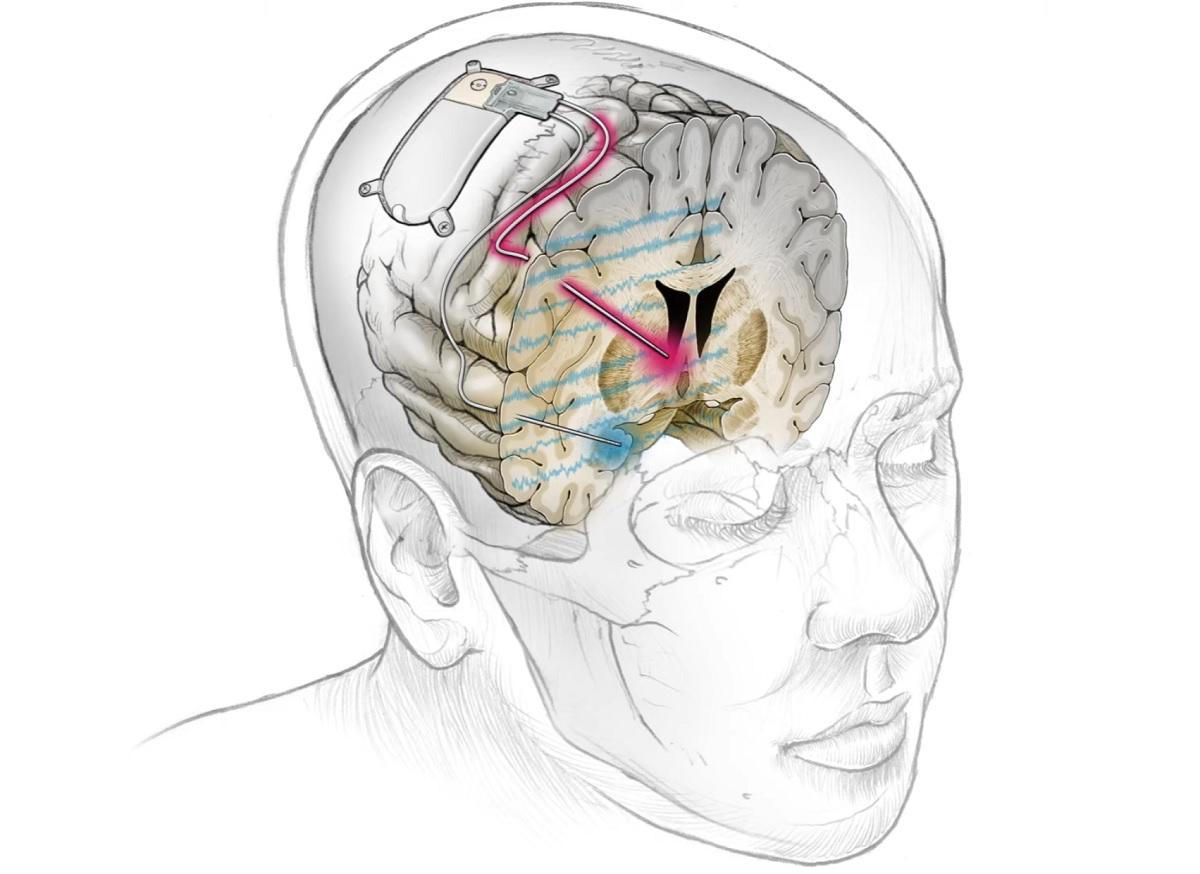Implante cerebral pode ser alternativa para depressão severa